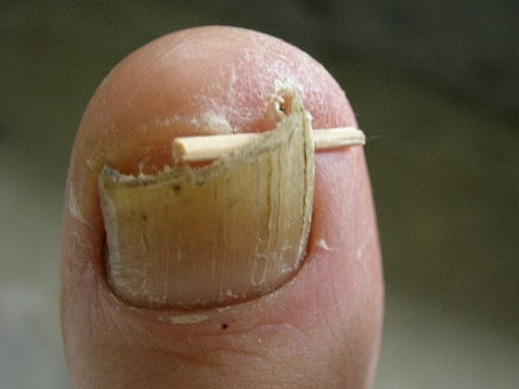 ingrown-toenail-home-treatment